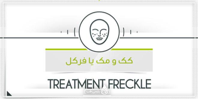 درمان کک و مک یا فرکل