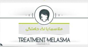 درمان ملاسما یا لک حاملگی