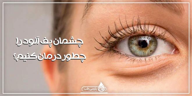 چشمان پف آلود را چطور درمان کنیم؟