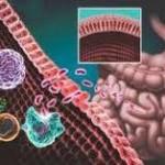 سندرم روده تحریک پذیر (IBS)