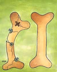 درمان پوکی استخوان - پارسی طبدرمان پوکی استخوان