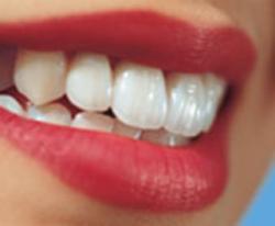 اگر قصد سفید کردن دندانهای خود را دارید بخوانید