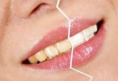 فرق پوسیدگی و تغییر رنگ دندان
