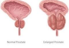 آیا میتوان از سرطان پروستات پیشگیری کرد؟