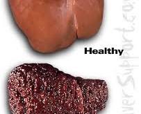 کبد چرب، بیماری بدون علامت 70 درصد افراد چاق