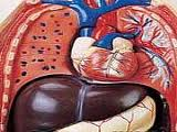 درمانی موفق برای کبد چرب