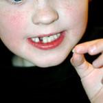 نكاتي در مورد دندانهاي شيري