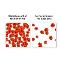بیماری هایی که با علایم کم خونی بروز می کند