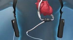 تایید اولین وسیله کمک قلبی کم حجم