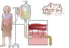 رژیم غذایی در بیماران دیالیزی