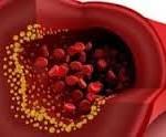 کاهش سطح چربی در خون