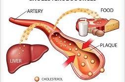 کلسترول چیست ؟ وچه عواملی باعث کلسترول بالا می شوند ؟