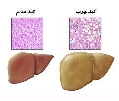 بیماری كبد چرب غیرالكلی خطر مرگ را افزایش نمیدهد
