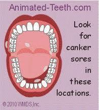 آیا استفاده از مولتیویتامین از آفت دهان پیشگیری میکند؟