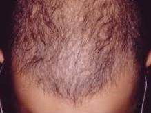 موهای سالم با مراقبت صحیح و درست