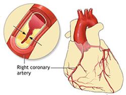 علتها و علایم گرفتگی رگ های قلب