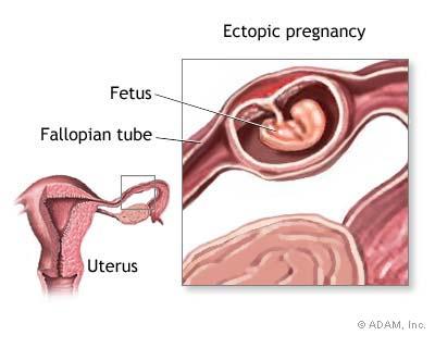 بارداري خارج رحمي چيست؟