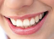 پلاک دندانی چیست؟