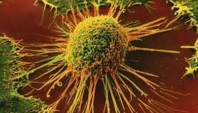 توصيههاي طب اسلامي براي پيشگيري از سرطان