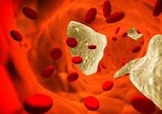نسخه ای گیاهی برای کاهش چربی خون