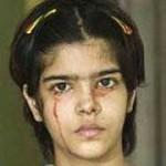 دختری که به جای اشک، خون میگرید
