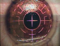 آيا ضعف چشم بعد از عمل برگشت پذير است؟