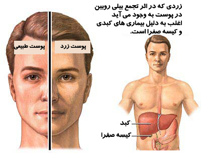 گیاهان دارویی مفید برای پوست