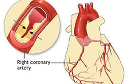 تصلب شرائین القلب :