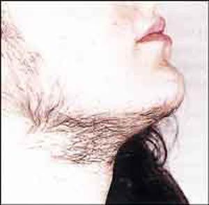 موهای زاید صورت در زنان