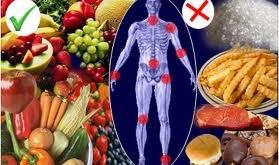بهترینهای غذایی برای آرتروز