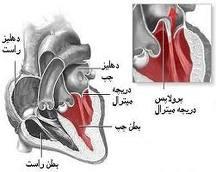 پرولاپس ( افتادگی ) دریچه میترال قلب