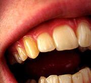چرا رنگ دندانهاي بعضي افراد زرد است؟