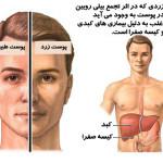 تاثير بيماری های کبدی روی پوست