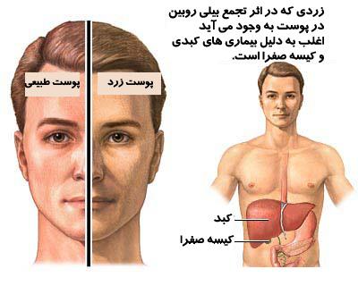 درمان جوش حاصل از کبد