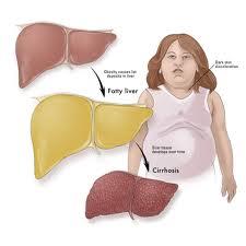 ویتامین E و کبد چرب کودکان