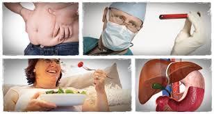 چاقی، دیابت، سوءتغذیه و بالا بودن چربی خون شایع ترین علل کبد چرب