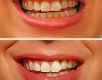 آيا جرمگيری دندانها را خراب میكند؟