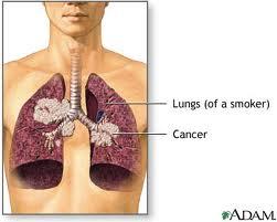 نکتههایی که باید درباره سرطان ریه بدانید