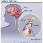 8 سوال کلیدی درباره بیماری MS
