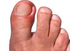 هنگام فرو رفتن ناخن پا در گوشت چه اقداماتی انجام دهیم؟