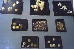رژيم غذايي در سنگ هاي كيسه صفرا