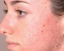 10 عامل تشدید کننده ی جوش پوست