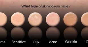 آزمونی برای تعیین نوع پوست