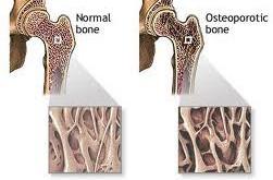 11 توصیه مهم برای تقویت استخوانها