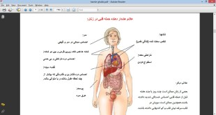 پیشگیری از حمله قلبی