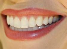 لق شدن دندان ها