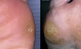 درمان پینه دست و پا