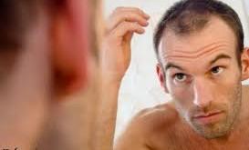 ریزش مو ، علل ریزش مو ، درمان ریزش مو
