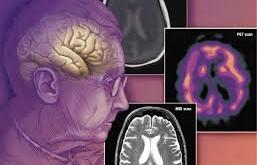 زوال عقل (Dementia) چیست؟