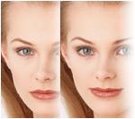 خشكي پوست و راههاي درمان آن